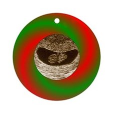 Red & Green Christmas Ultrasound Ornament (Rou