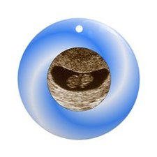 Blue Candy Christmas Ultrasound Ornament (Round)