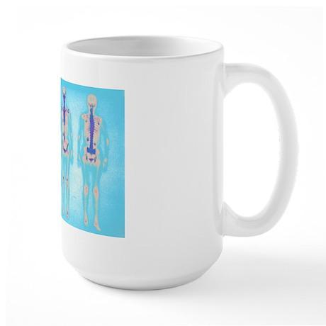 Radiology Large Mug