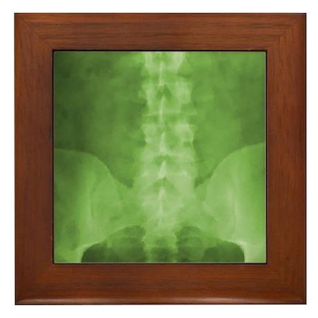 Green Digital X-Ray Art Framed Tile