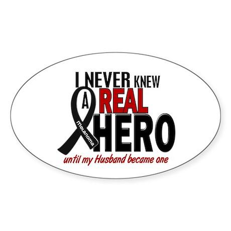 Never Knew A Hero 2 MELANOMA (Husband) Sticker (Ov