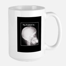 foot in mouth xray Mugs