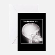 foot in mouth xray Greeting Cards