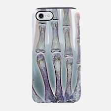 Thalassaemia, X-ray iPhone 7 Tough Case