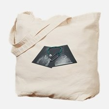 X-Ray Consult Tote Bag