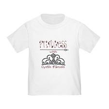 Cystic Fibrosis Princess T