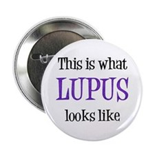 """This is what Lupus looks like 2.25"""" Button"""
