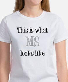 This is what MS looks like Tee