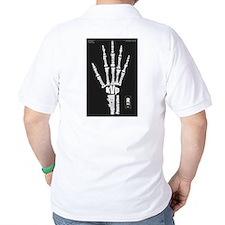 Hand x-ray T-Shirt