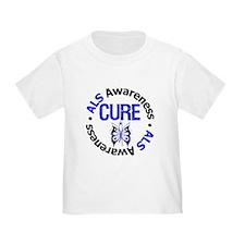 ALS Cure T