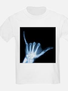 Unique Xray T-Shirt