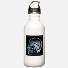Get your Head Examined XRay Water Bottle