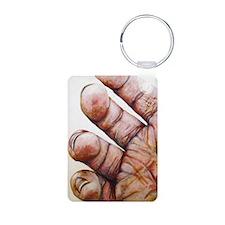 Cute Finger paint Aluminum Photo Keychain