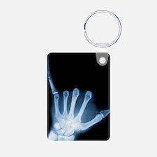 Shaka Sign X-Ray (Hang Loose) Keychains