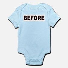 Cute Bypass surgery Infant Bodysuit