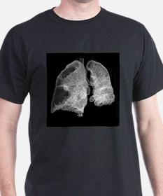Emphysema of the lungs, CT scan - T-Shirt