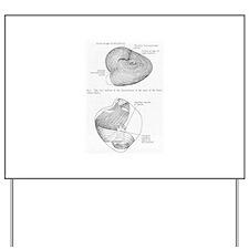 Grays Anatomy heart Yard Sign
