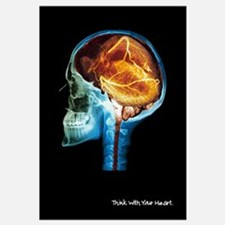 Heart Think MRI