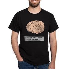 Abby Normal - T-Shirt