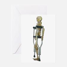 Skeleton on Crutches Greeting Card