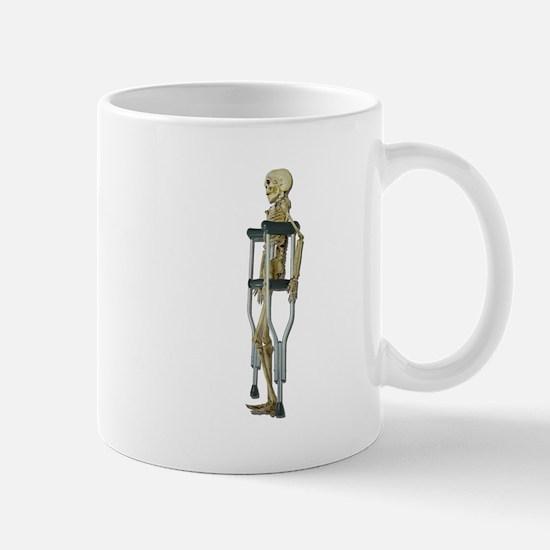 Skeleton on Crutches Mug