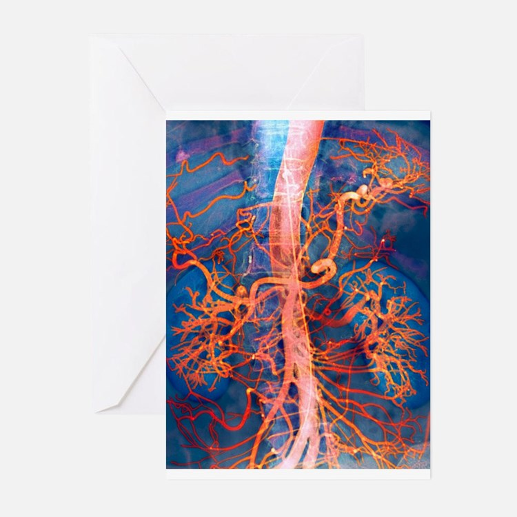 Abdominal arteries, X-ray Greeting Cards