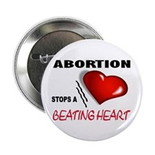 """STOP THE KILLING 2.25"""" Button (100 pack)"""