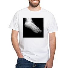 Broken Foot X-Ray Shirt