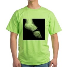 Broken Foot 2 T-Shirt