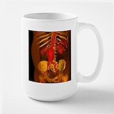 Aortic aneurysm, 3-D CT Stainless Steel Travel Mug
