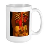 Aorta Large Mugs (15 oz)