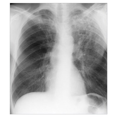Old and new tuberculosis, X-ray Canvas Art