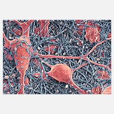 Nerve cells and glial cells, SEM