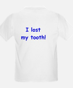 I lost my Tooth - now everyone knows!