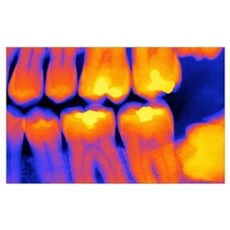 Teeth with fillings, X-ray Poster