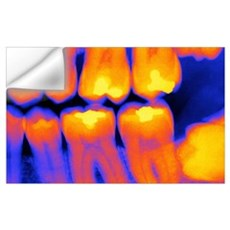 Teeth with fillings, X-ray Wall Decal