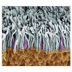 Retina rods and cones, SEM Poster