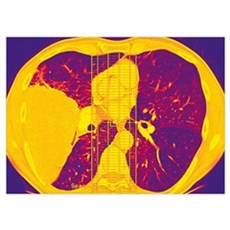 Lung cancer, CT scan Poster