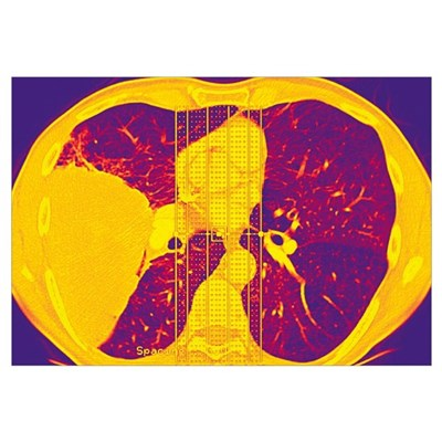 Lung cancer, CT scan Framed Print