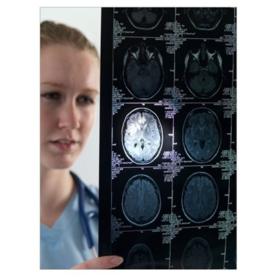 Doctor studying an MRI scan Framed Print