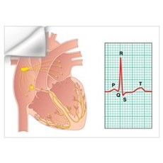 Electrical conduction of the heart Wall Decal
