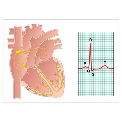 Electrical conduction of the heart Poster