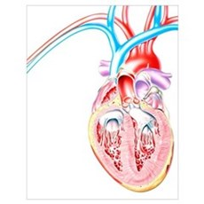 Artwork of heart in congestive heart failure Poster