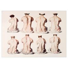 Back deformities Poster