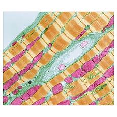 Cardiac muscle, TEM Poster