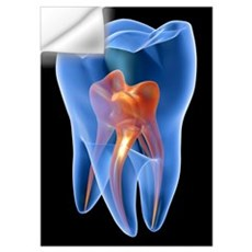 Molar tooth Wall Decal