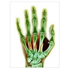 Fractured palm bones of hand, X-ray Framed Print