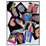 Assortment of coloured x rays Framed Prints