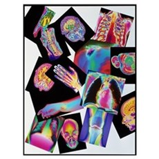 Assortment of coloured X-rays and body scans Framed Print
