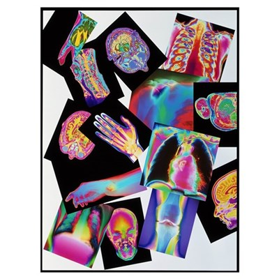 Assortment of coloured X-rays and body scans Poster